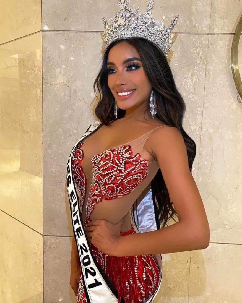 """ملكة جمال المكسيك تحصد لقب """"ميس إيليت"""""""