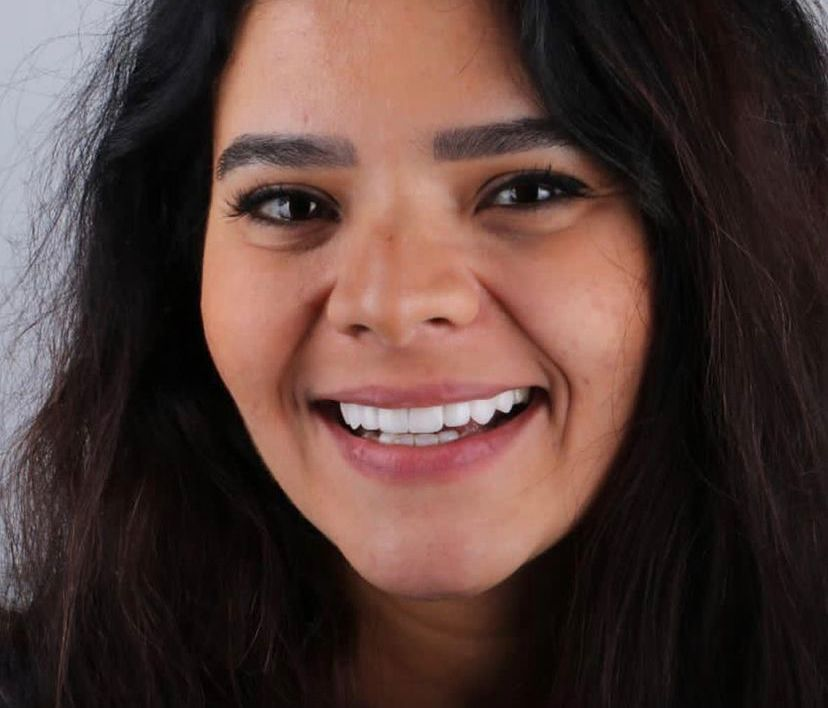 """الحالات التى تحتاج للفينيرز قال """" الفينيرز فى الأساس هو شكل جمالى، ولكن يمكن استخدامه فى علاج بعض الحالات ، مثل إصفرار الأسنان بشكل كبير لان طبقة الفينير لا تتأثر بالتصبغات من الكافيين والتدخين ، أو علاج لتزاحم الأسنان"""
